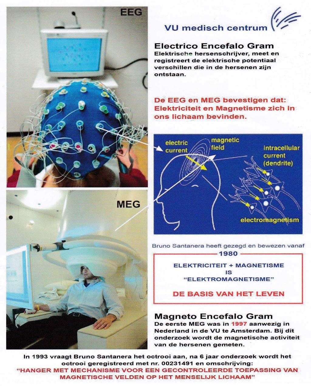 EEG-MEG